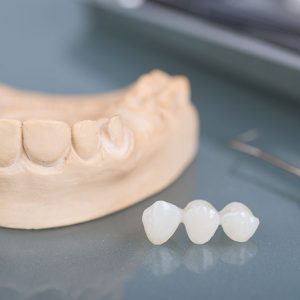 Restorative Dentistry In Powder Springs Ga Stress Free